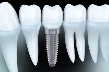 Darmowa konsultacja protetyczna i implantologiczna